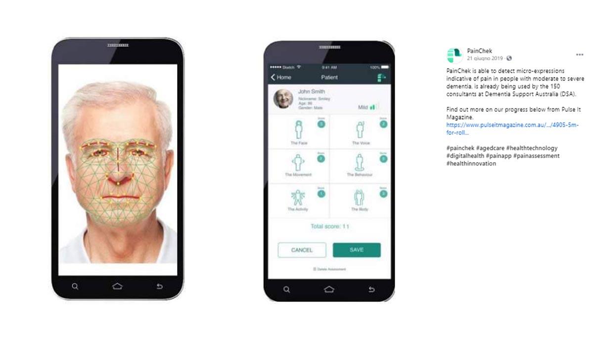 Come funziona PainChek, l'app che misura il dolore